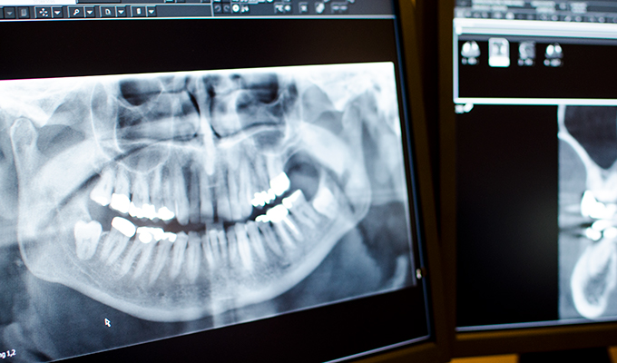 ta bort tand
